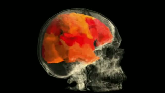 Kadının orgazm anında beyni