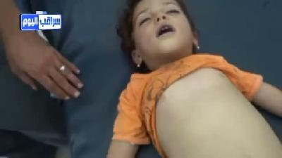 Suriye'de aşı olan 20 çocuk öldü